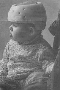occipital-plagiocephaly-helmet